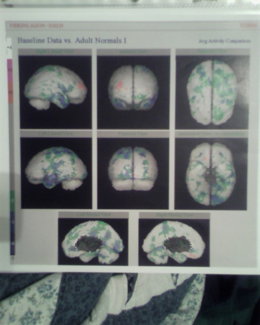 SPECT Scan of Multiple Chemical Sensitivity (MCS) Patient Brain