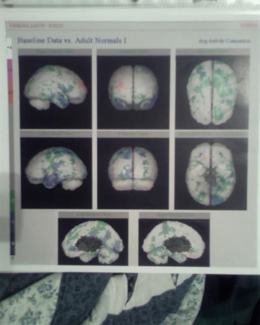SPECT Scan of Multiple Chemical Sensitivity (MCS) Patient Brain
