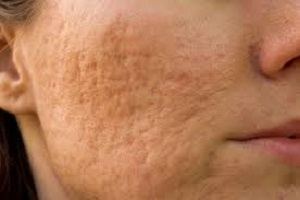Woman with keloid acne scars on her face