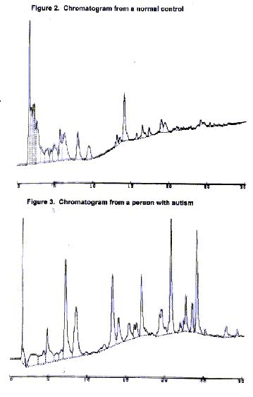 HPLC results from control and autism samples
