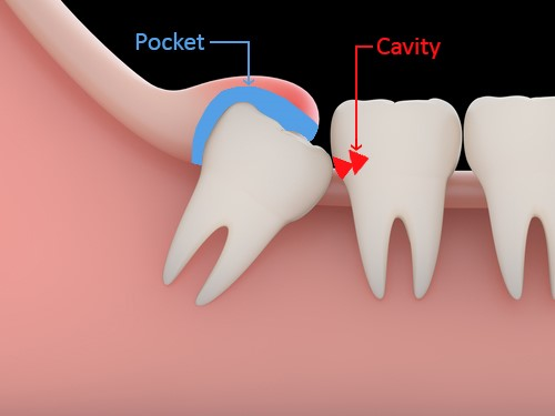 Diagram of a tooth cavity