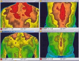Medical imaging scans showing pain reduction by LifeWave's IceWave patches
