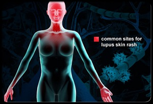 Lupus Rash Sites